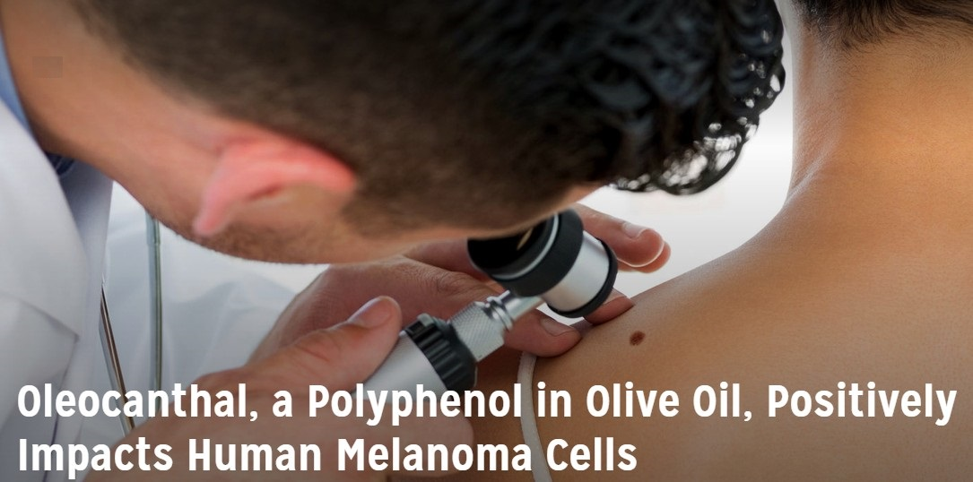 Olecanthal, a Polyphenol in Olive Oil, Postively Impacts Human Melanoma Cells